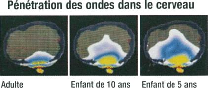 Penetration-ondes-cerveau