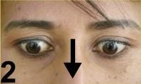 yoga-des-yeux2